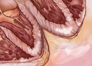 The beginnings of my rendering of the myocarditis