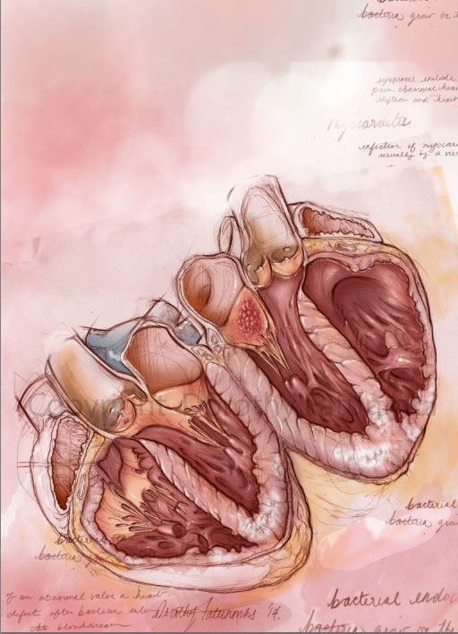 I scribbled some text describing the symptoms of the two pathologies that I depicted- Endocarditis and Giant cell myocarditis.