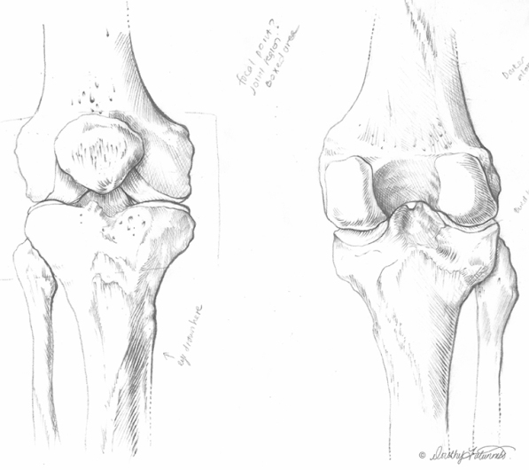 Pencil sketch of the anterior and posterior view of the knee joint